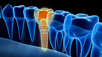 What Are The Differences Between Dentures And Dental Implants?